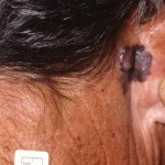 NECK AND NECK MELANOMA Dr John