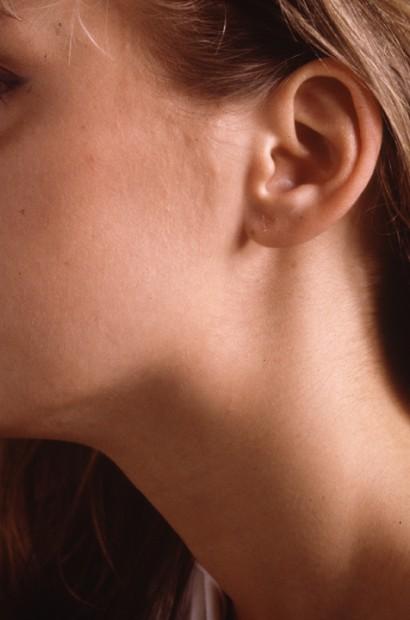 Neck lumps dr john chaplin head and neck surgeon neck lump neck mass lymph node parotid tumour thyroid nodule submandibular lump publicscrutiny Images