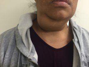 Submandibular neck lump