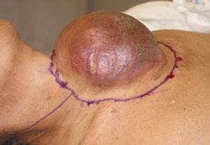 Thyroid_Cancer_Dr_John