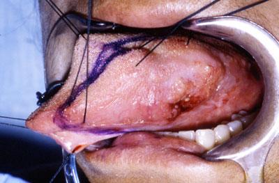 Tongue and Oral Cavity Cancer Dr John