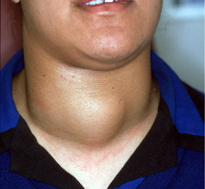 Thyroid Surgery Dr John Chaplin Head And Neck Surgeon