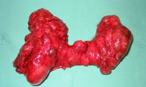 total_thyroidectomy_dr_john